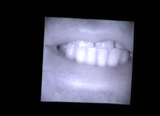 Image d'un des écrans sur scène